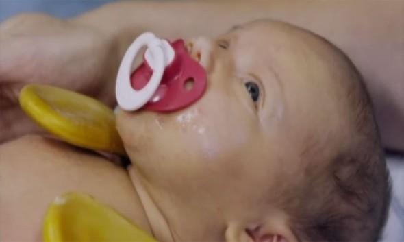 Pieniä potilaita: Sophia-vauva saa lastahoitoa ja Anni-Pauliina toipuu elinsiirrosta